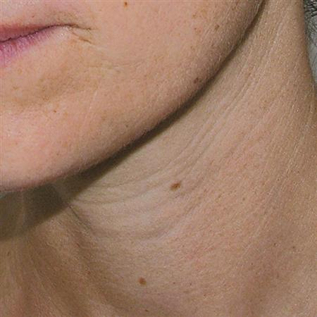 mesoterapi_mesotherapy_for_after_fore_efter_cuello_antes R