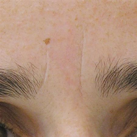 mesoterapi_mesotherapy_for_after_fore_efter_frente_antes R