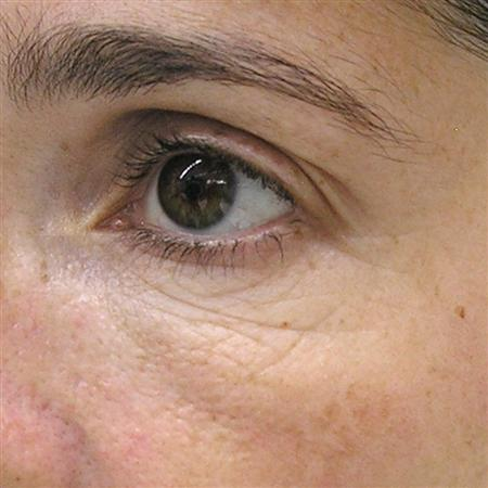 mesoterapi_mesotherapy_for_after_fore_efter_ojos_antes R