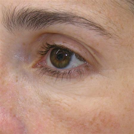 mesoterapi_mesotherapy_for_after_fore_efter_ojos_después R
